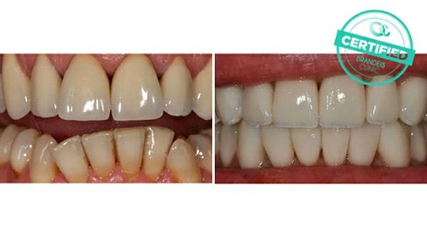 zuby pred a po